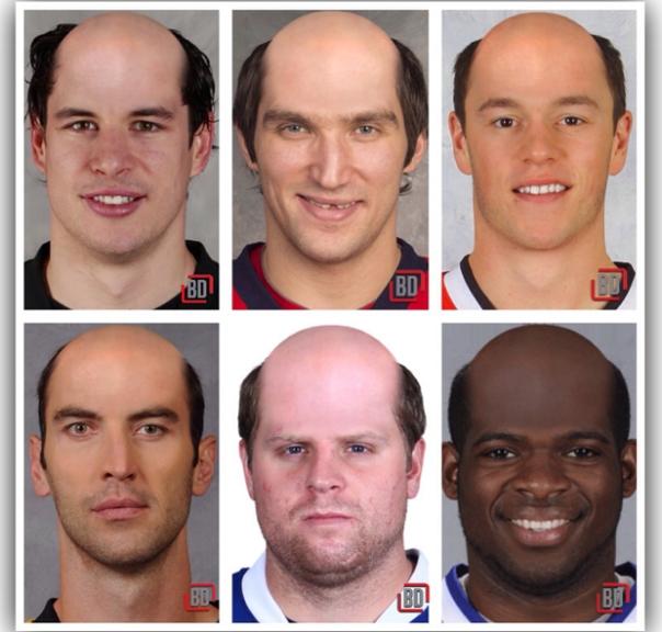 plaers bald 1