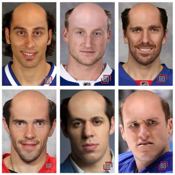 players bald 2